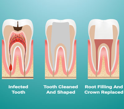 Root Canal Therapy in Parkville, MD - Gregory Puccio DMD